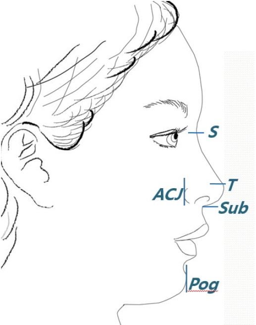 Adaptive Planning And Overcoming Pitfalls In Asian Rhinoplasty