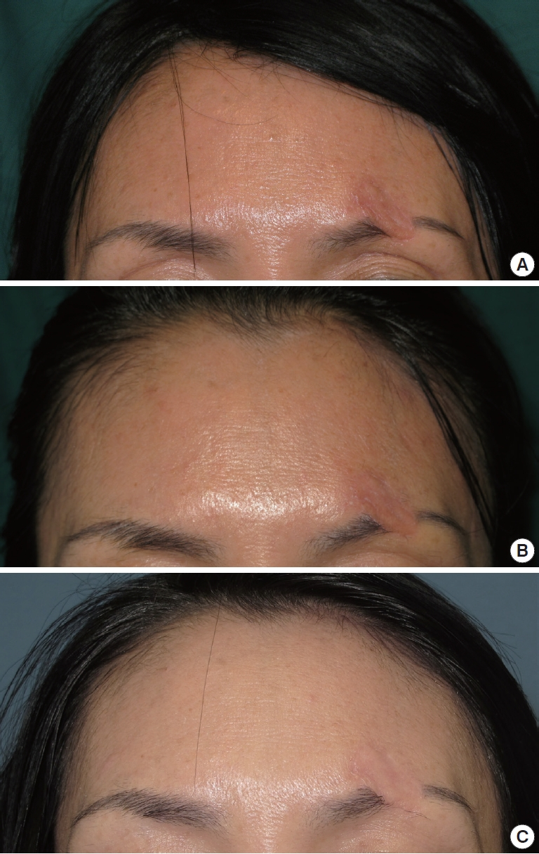 Efficacy of Early Application of Ablative Fractional CO<sub