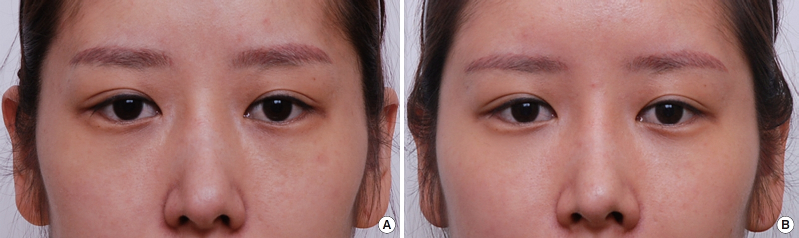 Correction of Dark Coloration of the Lower Eyelid Skin with