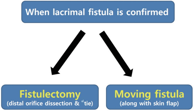 Management of Lacrimal Fistula during Epicanthoplasty: A